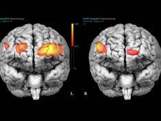 Neurobiologia del Borderline: cosa succede nel cervello di un borderline