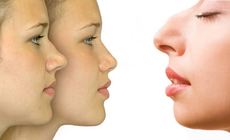 Una nuova tecnica per i difetti del naso, rinofiller