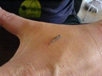 Alla Newfusion Belga sperimentano il chip subcutaneo al posto del badge