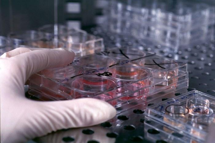 Organi di ricambio dalle staminali polipotenti