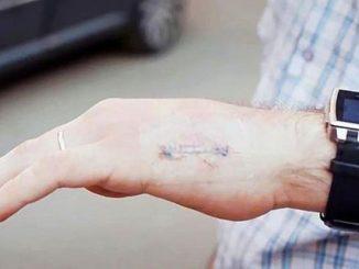 Dipendenti ''cyborg'' al lavoro con microchip