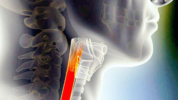 Esofago bioartificiale impiantato con successo da due ricercatori italiani