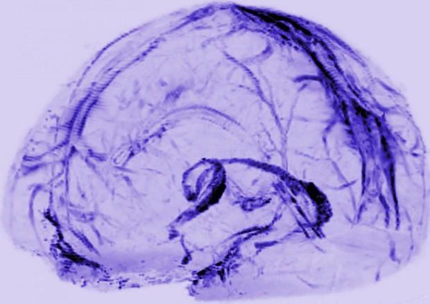 Rappresentazione grafica del sistema con cui il cervello drena le sostanze di scarto (fonte: Reich Lab, NIH/NINDS) © Ansa
