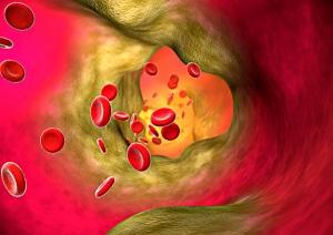 """Un'arteria colpita da aterosclerosi. L'ipertensione è un problema di tubature: se il """"tubo"""" è stretto la pressione sale, se si allarga la pressione scende: il rilassamento ottenuto con la meditazione fa dilatare i vasi sanguini e scendere la pressione."""