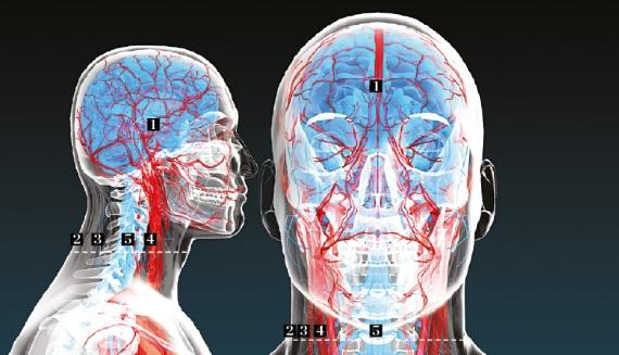 I punti critici dell'intervento.1 Al freddo.Le teste di donatore e ricevente vengono bloccate con uno stabilizzatore cranico. Il cervello del ricevente viene raffreddato a 15 °C.;2 Pelle e muscoli.Sulla parte anteriore del collo di entrambi vengono sezionate la pelle e i muscoli (etichettati con colori diversi per facilitare la riconnessione);3 Verso l'interno.È poi la volta dei nervi cranici, della trachea e dell'esofago;4 Vene e arterie.Vengono sezionate e clampate (chiuse con un morsetto) le arterie che irrorano il cervello e le vene (che riportano il sangue dalla testa al cuore);5 Nel midollo.Infine vengono recise le vertebre e, con una lama ultrasottile, il midollo. È la parte più critica. La testa del ricevente è trasferita sul corpo del donatore e tutte le parti riconnesse.