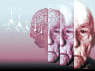 """Nella malattia di Alzheimer, la proteina tau avanza sfruttando il nostro """"punto di forza"""": la connettività cerebrale."""