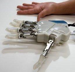 Al gemelli, effettuato con successo, l'impianto di una mano bionica
