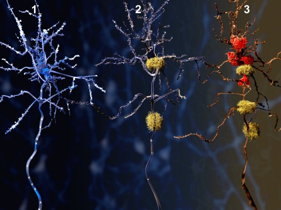 I tre stadi della malattia di Alzheimer: i neuroni soffocati da placche e grovigli vengono poi eliminati e digeriti dalle cellule della microglia, responsabili della difesa immunitaria nel sistema nervoso centrale.| SHUTTERSTOCK