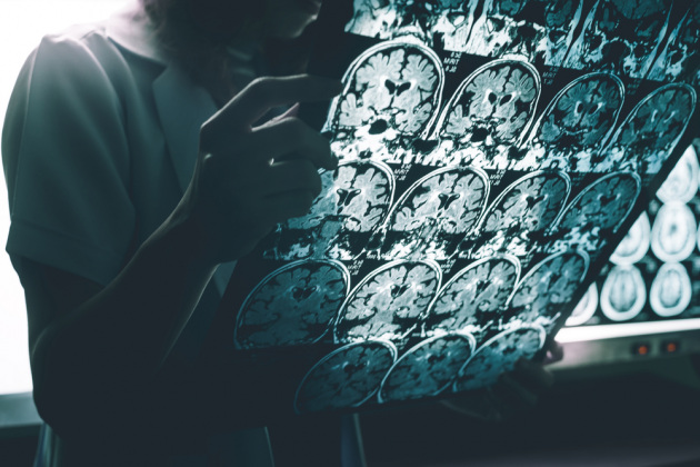 La risonanza magnetica di un cervello con Alzheimer.