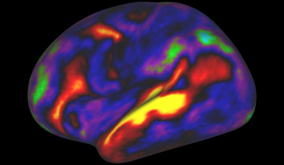 La nostra corteccia cerebrale è suddivisa in ben 360 aree (più della metà era sconosciuta): vedi Nella foto: in giallo, l'area che si attiva quando si ascolta una storia. | Mattew F. Glasser, David C. Van Essen