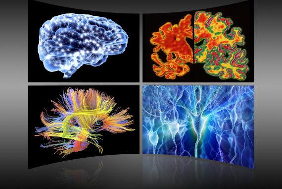 Screening del cervello