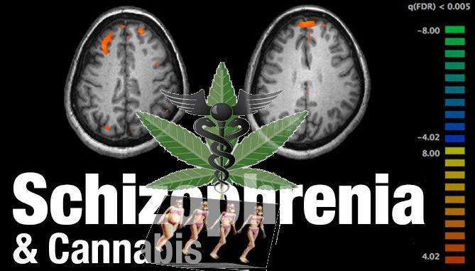 L'uso di marjuana come cura contro la schizofrenia