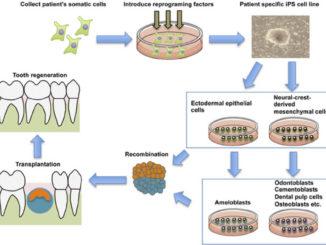 Nuova cura per le carie dentali con le cellule staminali