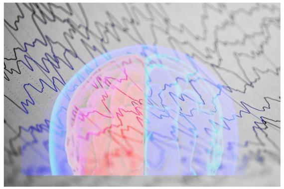 L'attività elettrica del cervello in una immagine concettuale. Vedi anche il caso del cervello vissuto 10 minuti in più. | Shutterstock