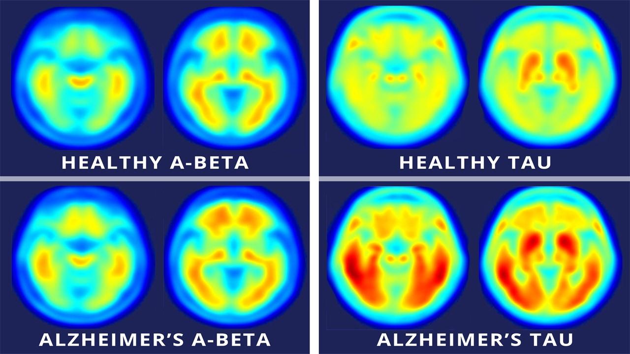 L'intelligenza artificiale riesce a predire l'Alzamheir