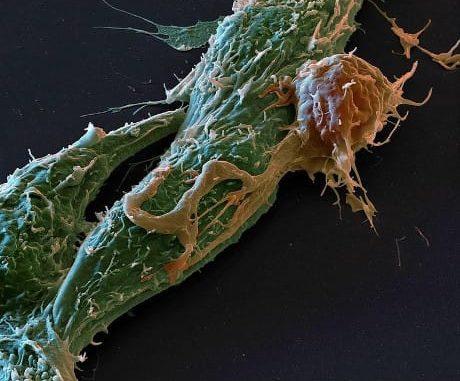 Microfotografa in falsi colori di una cellula tumorale (in verde) aggedita da un linfocita, il tipo principale di cellula del sistema immunitario (© Science Photo Library / AGF)