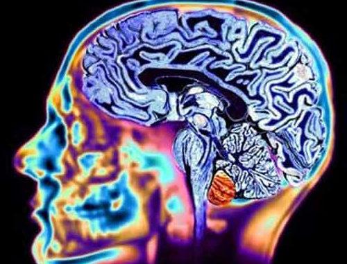 Un cervello adulto, mantenuto in salute, non invecchia