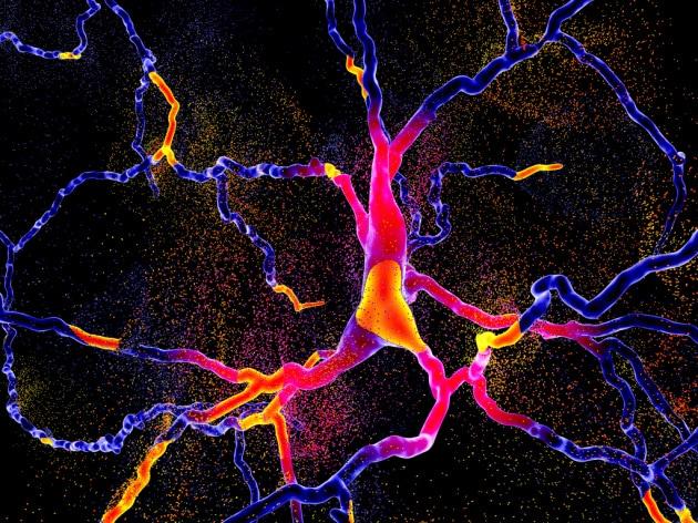 La degenerazione dei neuroni dopaminergici caratteristica della malattia di Parkinson: un'illustrazione scientifica.