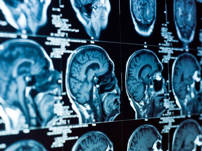 Radiografie Tac craniche