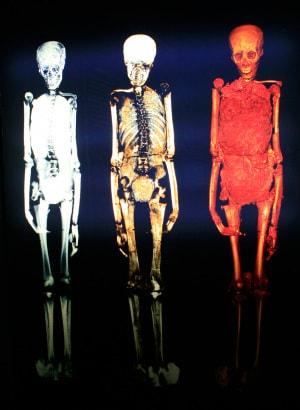 Oggi i raggi X vengono impiegati a complemento delle autopsie. Può succedere, per esempio, che una massa di sangue contenga indizi importanti, quali i resti di un proiettile o una scheggia. Con l'aiuto della radiografia, i medici legali possono ipotizzare le cause di morte senza effettuare l'autopsia. Questo metodo è stato usato sulla mummia di Tutankhamon (nella foto), il faraone secondo alcuni assassinato 3.300 anni fa.