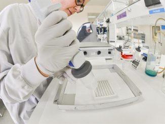 Nuova cura con cellule staminali per la SLA
