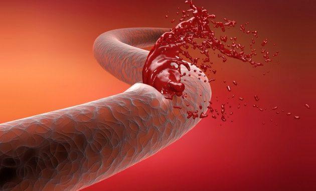La rottura improvvisa di un vaso sanguigno (illustrazione medica).|Shutterstock