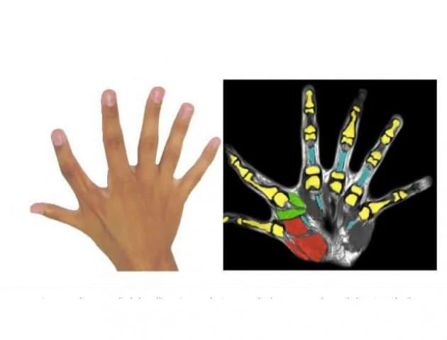In rosso, i normali muscoli del pollice, in verde i muscoli che comandano il dito in più (il secondo), non presenti nelle mani a 5 dita|University of Freiburg, Center Hospitalier Universitaire Vaudois Lausanne, Imperial College London