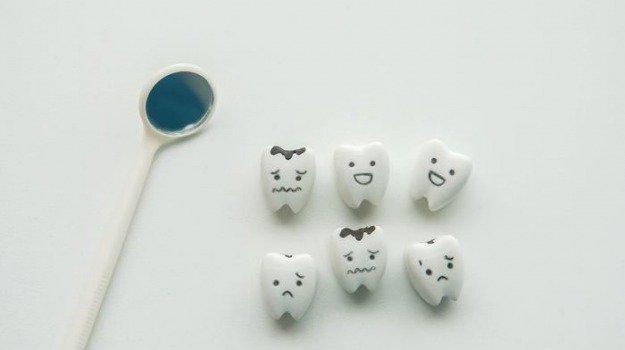 Create resine per carie con nanoparticelle in argento