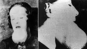 Una radium girl affetta da cancro alla mandibola