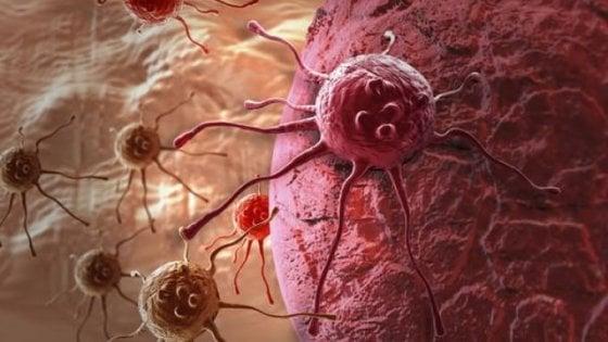 Metastasi tumorale