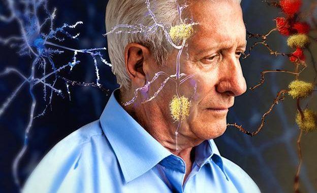 L'intelligenza artificiale è in grado di diagnosticare l'alzheimer