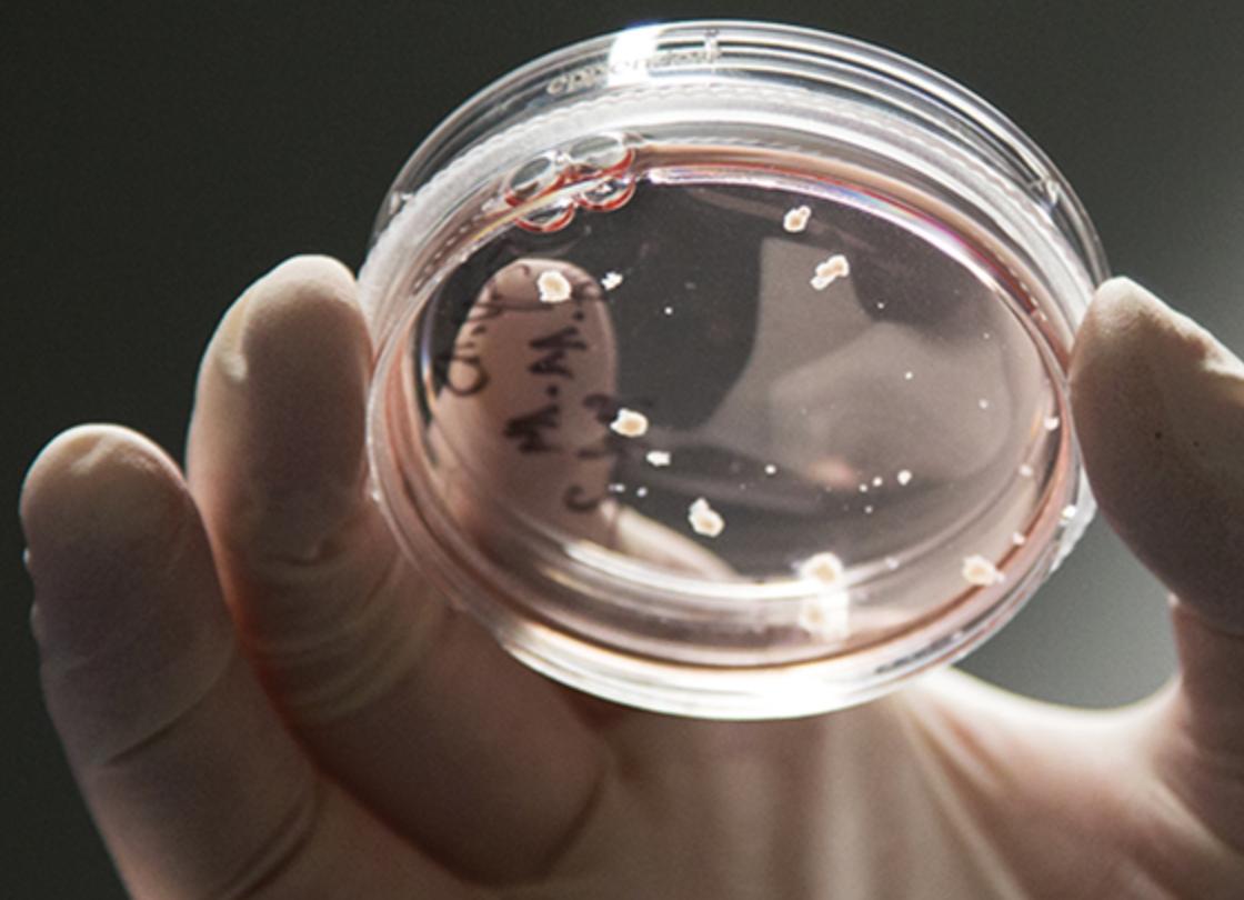 Cervelli prodotti in laboratorio acquisiscono autocoscienza
