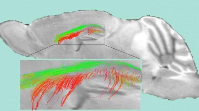 Studi sulle connessioni cerebrali per nuove cure della demenza