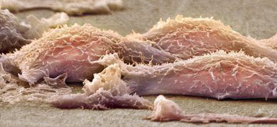 Microfotografia di cellule di sarcoma (© Science Photo Library RF / AGF)