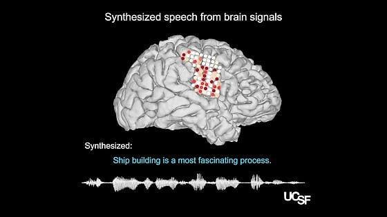 I suoni del cervello
