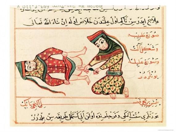 L'operazione della castrazione in una miniatura del 1466. |
