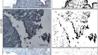 La replicazione del virus dell'herpes simplex (HSV1) nelle sezioni del cervello era fortemente compromessa in assenza dell'attività di de-ubiquitinazione della sua proteina VP1-2 (ΔDUB, riga inferiore), come mostrato qui dal numero ridotto di cellule produttrici di virus (nero). Ciò evidenzia il ruolo di VP1-2 nel sopprimere l'immunità.La replicazione del virus dell'herpes simplex (HSV1) nelle sezioni del cervello era fortemente compromessa in assenza dell'attività di de-ubiquitinazione della sua proteina VP1-2 (ΔDUB, riga inferiore), come mostrato qui dal numero ridotto di cellule produttrici di virus (nero). Ciò evidenzia il ruolo di VP1-2 nel sopprimere l'immunità (credito: Bodda et al. 2020)