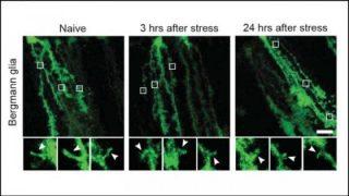 Così lo stress altera il cervello