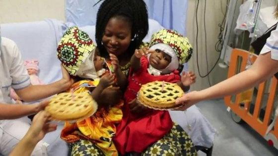 Due gemelline siamesi unite dalla testa, separate al Bambino Gesù