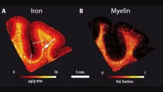 I ricercatori hanno creato una mappa a risoluzione altissimadella materia bianca superficiale del cervello (credito: MPI CBS)