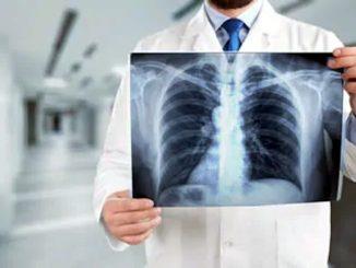 Algoritmo PACE ad alta risoluzione la diagnosi con i raggi X
