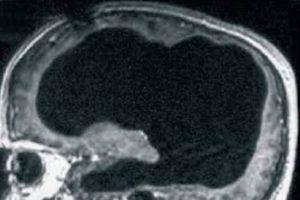 Risonanza magnetica del cranio del paziente 44enne. L'area nera rappresenta il liquido cefalorachidiano che ha preso il posto del cervello del paziente. Feuillet et al./The Lancet